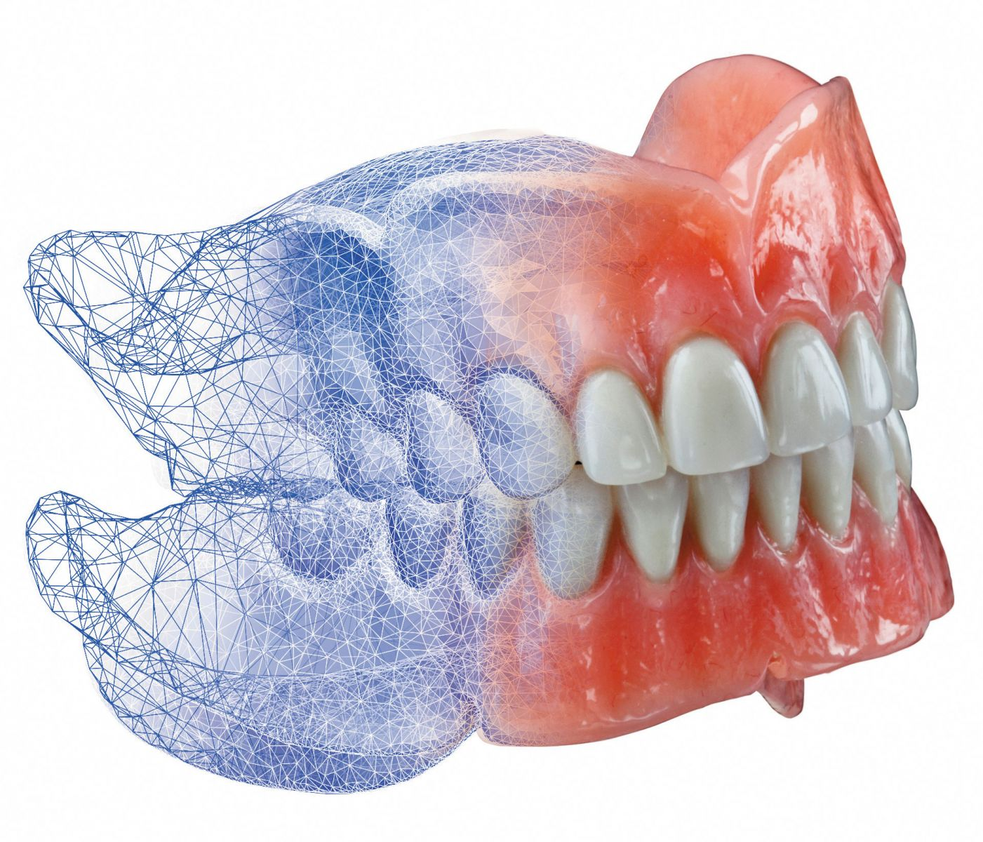6AvaDent-DIGITAL-DENTURE-ON-WHITE